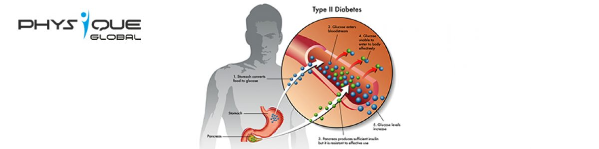 All you need to know about Type-2 diabetes.