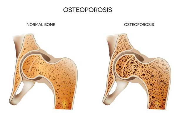 What is osteoporosis and how can we avoid it.
