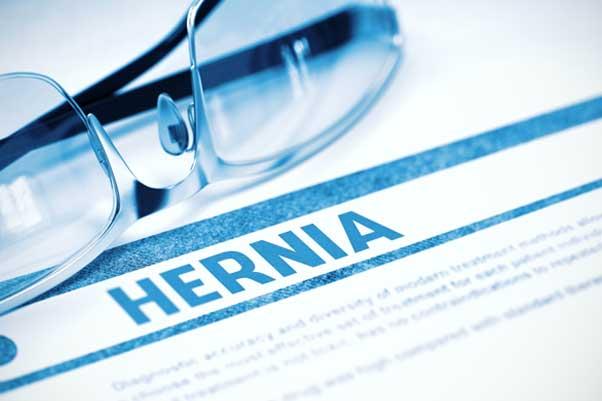 Understanding sports hernia.